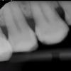 x-ray-centerville-dentist